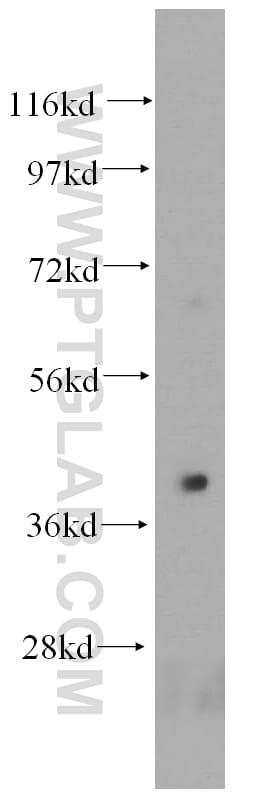 HLA-E Antibody in Western Blot (WB)