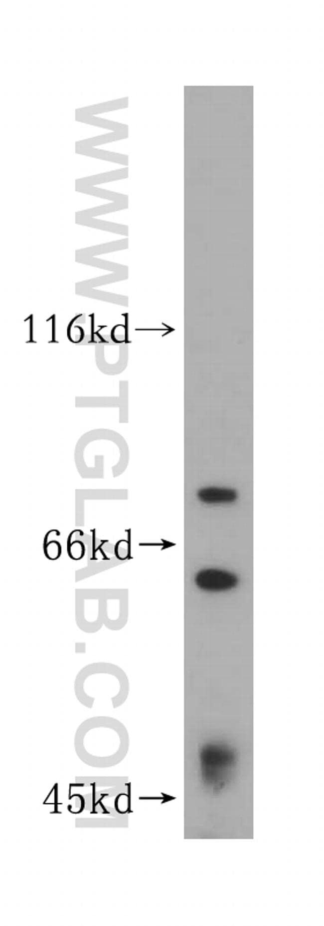 HNRNPR Antibody in Western Blot (WB)