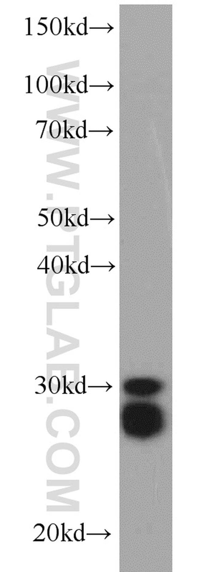 CPSF4 Antibody in Western Blot (WB)