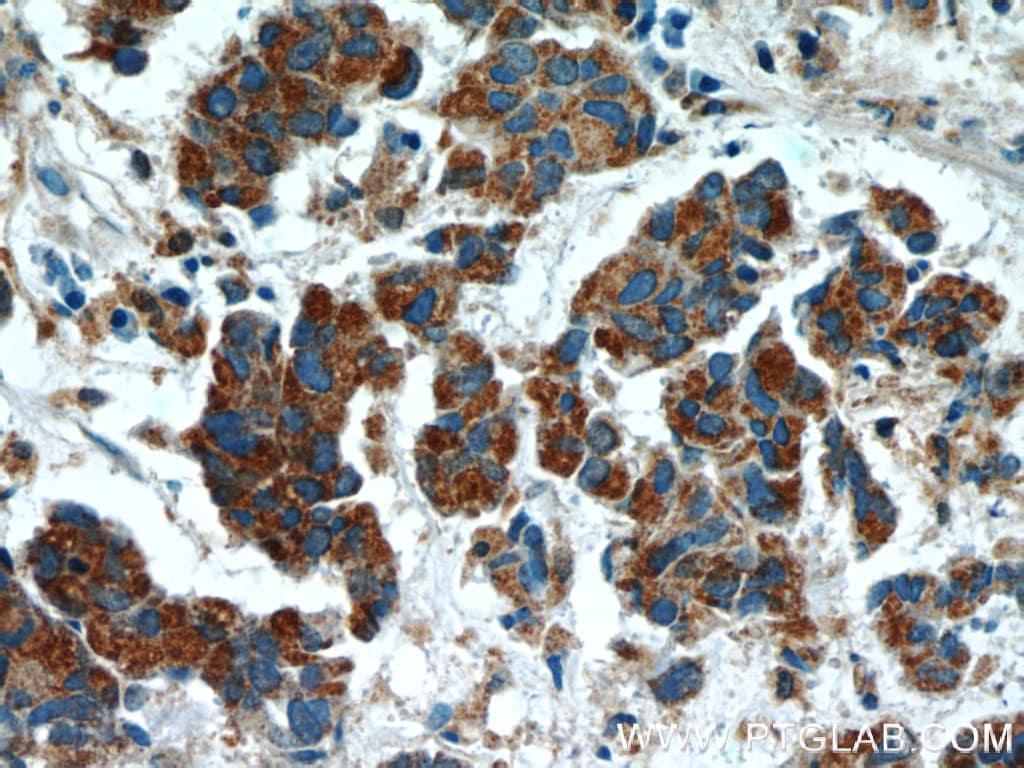 SMOX Antibody in Immunohistochemistry (Paraffin) (IHC (P))