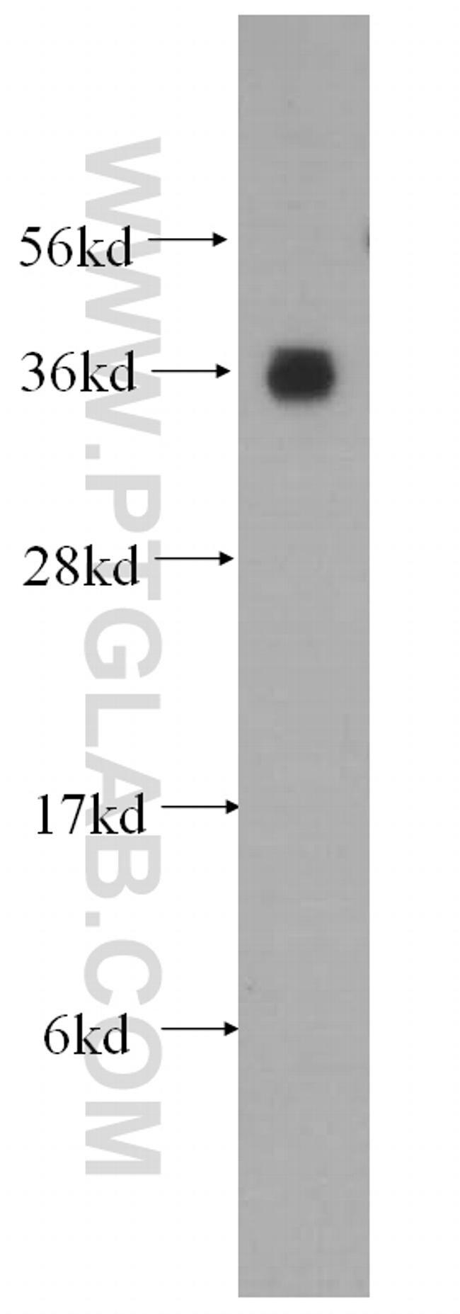 AKR1A1 Antibody in Western Blot (WB)