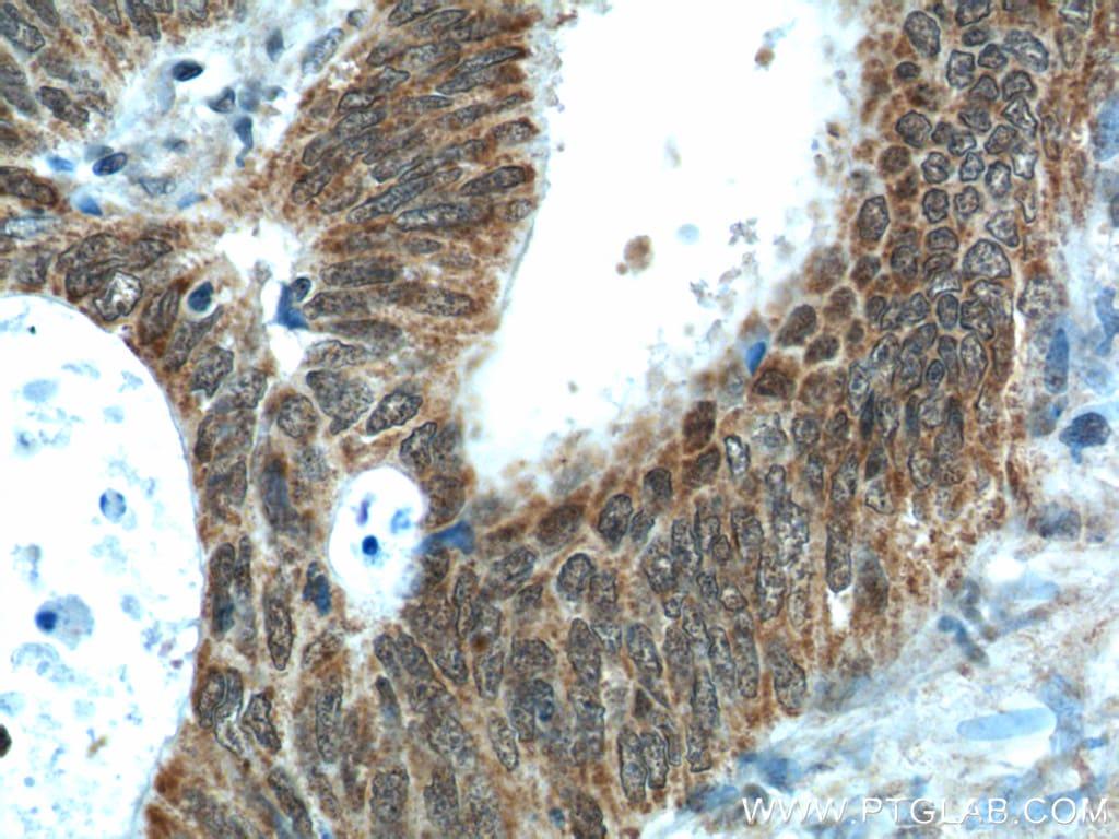 NUPR1 Antibody in Immunohistochemistry (Paraffin) (IHC (P))