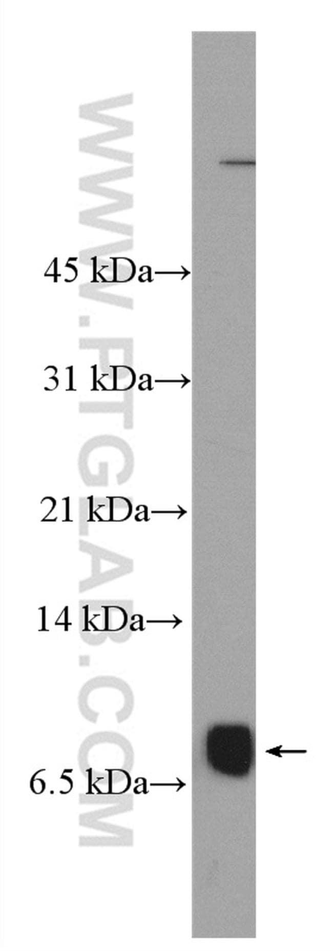 NUPR1 Antibody in Western Blot (WB)
