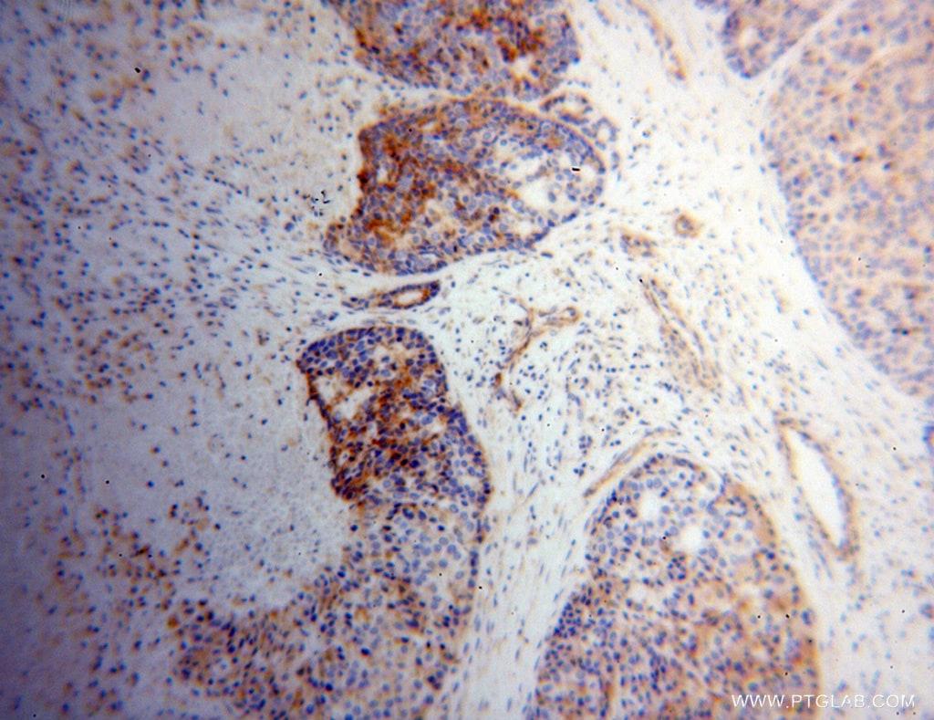 NDUFS3 Antibody in Immunohistochemistry (Paraffin) (IHC (P))