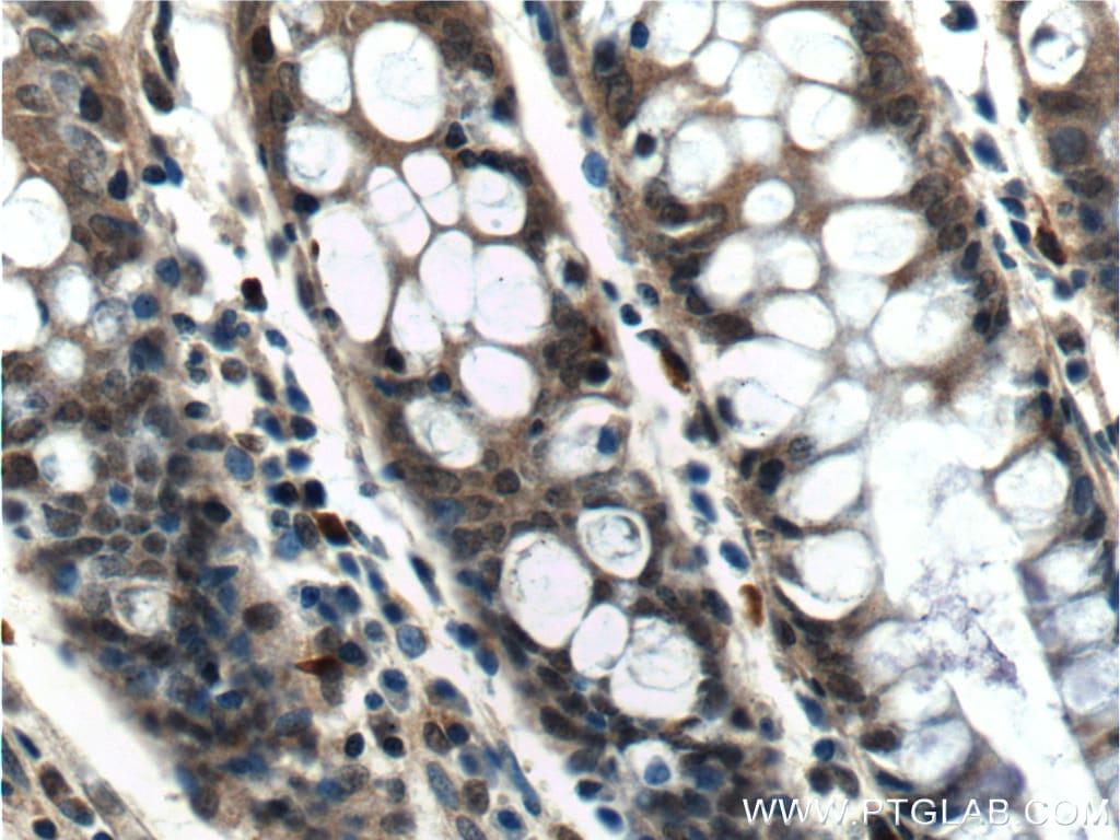 PCBP2 Antibody in Immunohistochemistry (Paraffin) (IHC (P))