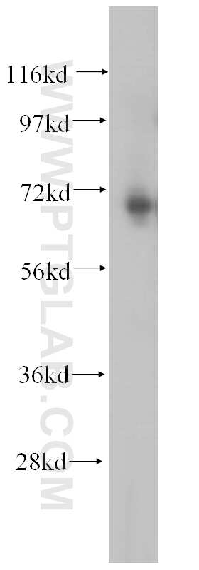 METTL3 Antibody in Western Blot (WB)