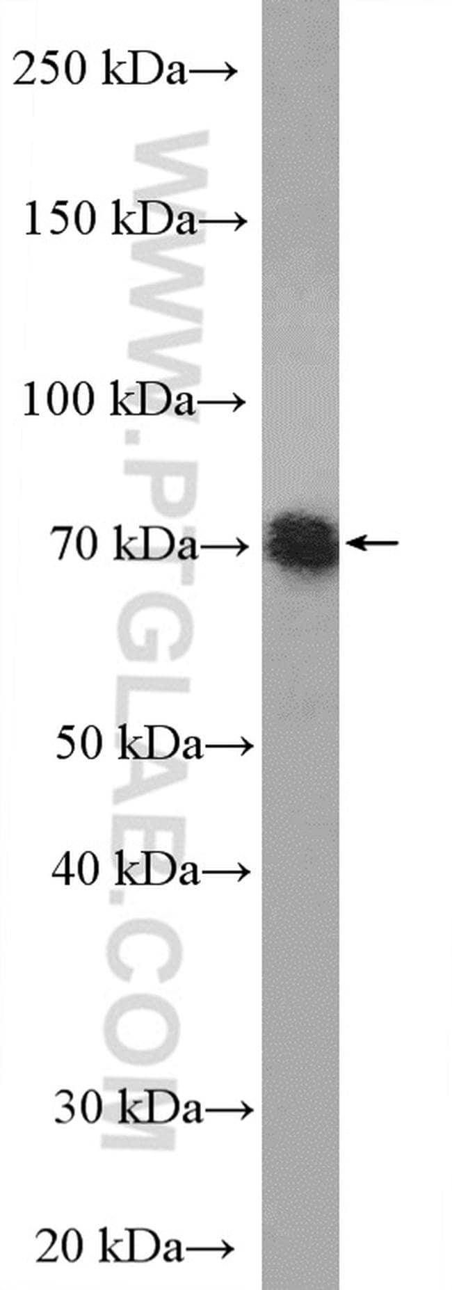 TNIP1 Antibody in Western Blot (WB)