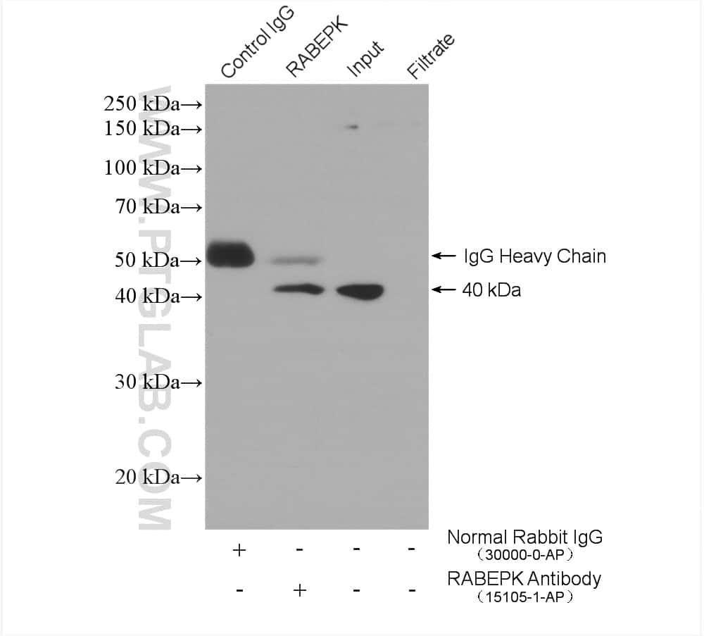 RABEPK/p40 Antibody in Immunoprecipitation (IP)