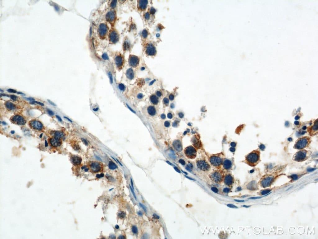 CAPRIN1 Antibody in Immunohistochemistry (Paraffin) (IHC (P))