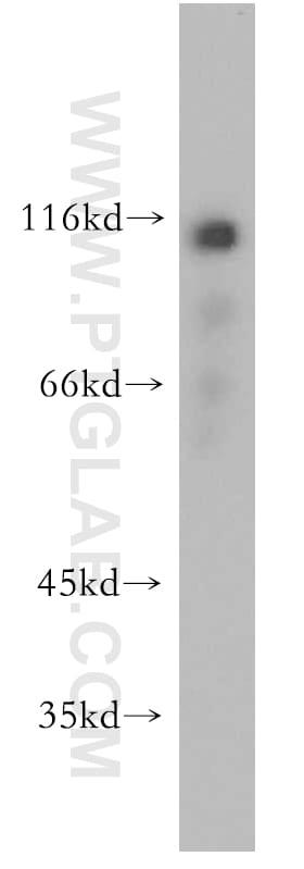 CAPRIN1 Antibody in Western Blot (WB)