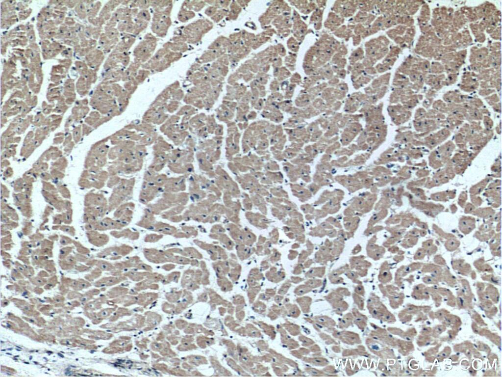 FKBP1B Antibody in Immunohistochemistry (Paraffin) (IHC (P))