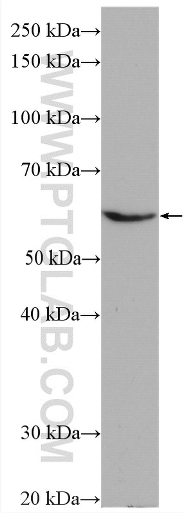HYAL2 Antibody in Western Blot (WB)
