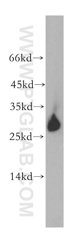 GSTO1 Antibody in Western Blot (WB)