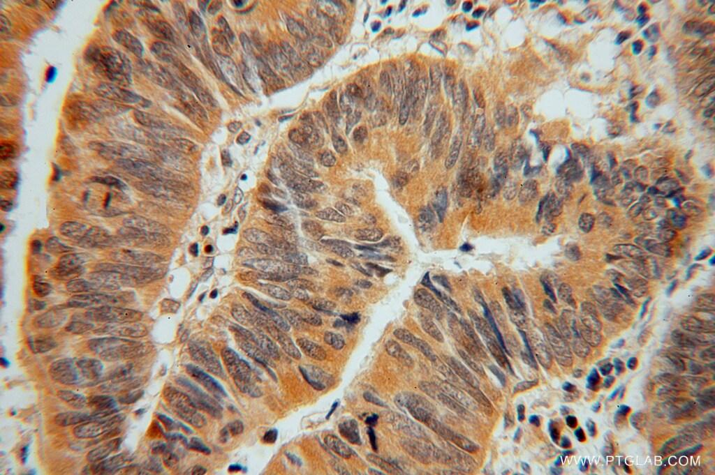 ADI1 Antibody in Immunohistochemistry (Paraffin) (IHC (P))