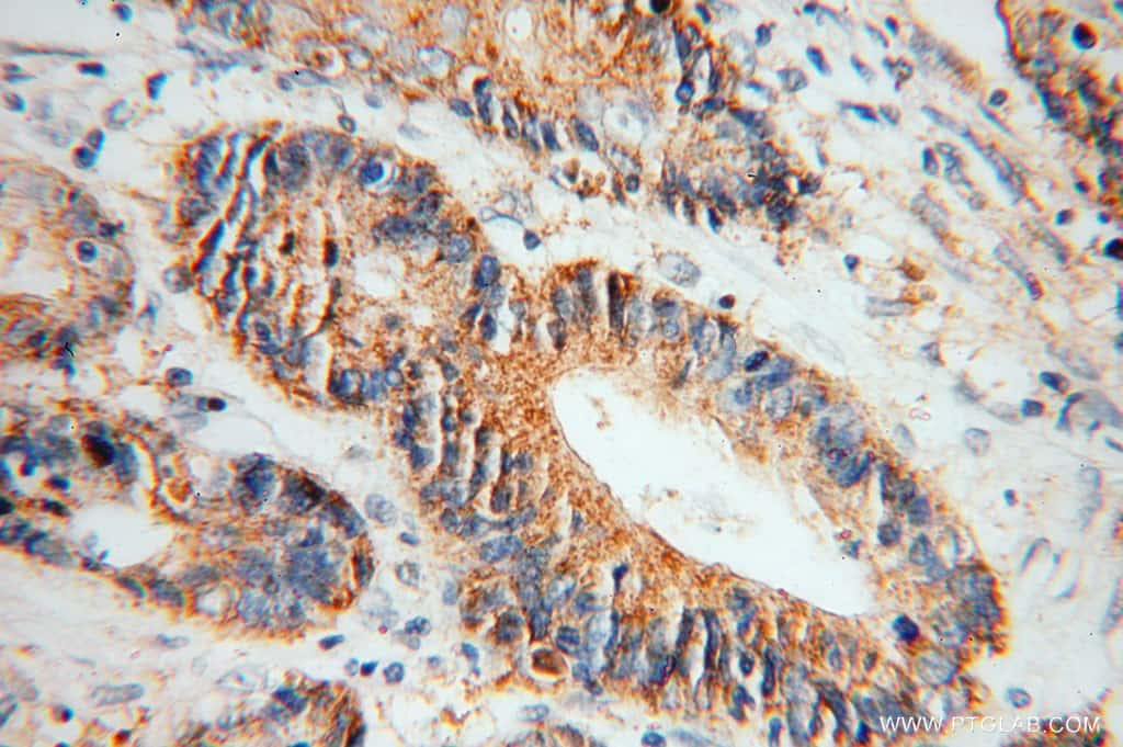 Creatine kinase B type Antibody in Immunohistochemistry (Paraffin) (IHC (P))