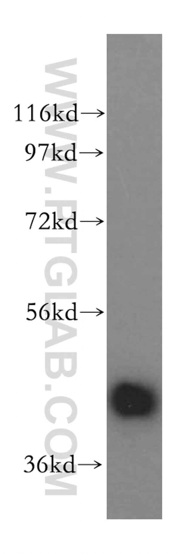 Creatine kinase B type Antibody in Western Blot (WB)