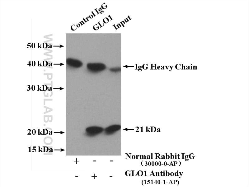 GLO1 Antibody in Immunoprecipitation (IP)
