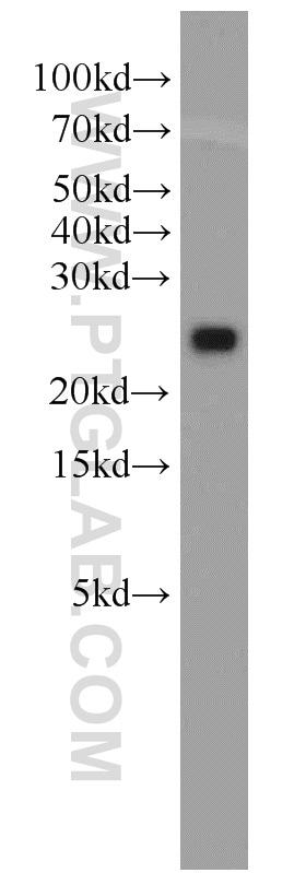 GLO1 Antibody in Western Blot (WB)
