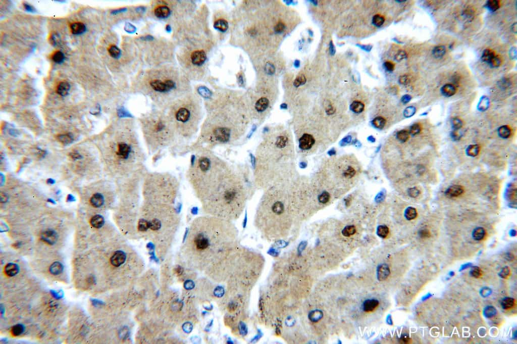 PGM1 Antibody in Immunohistochemistry (Paraffin) (IHC (P))