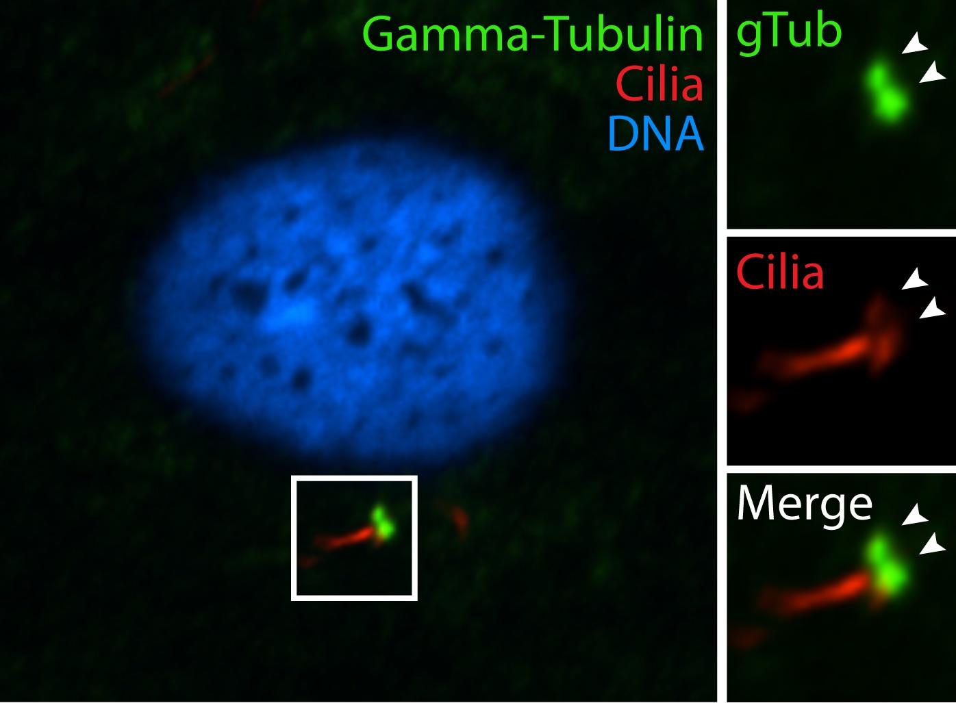 gamma Tubulin Antibody in Immunofluorescence (IF)