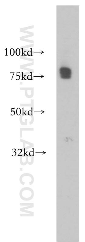 CA12 Antibody in Western Blot (WB)