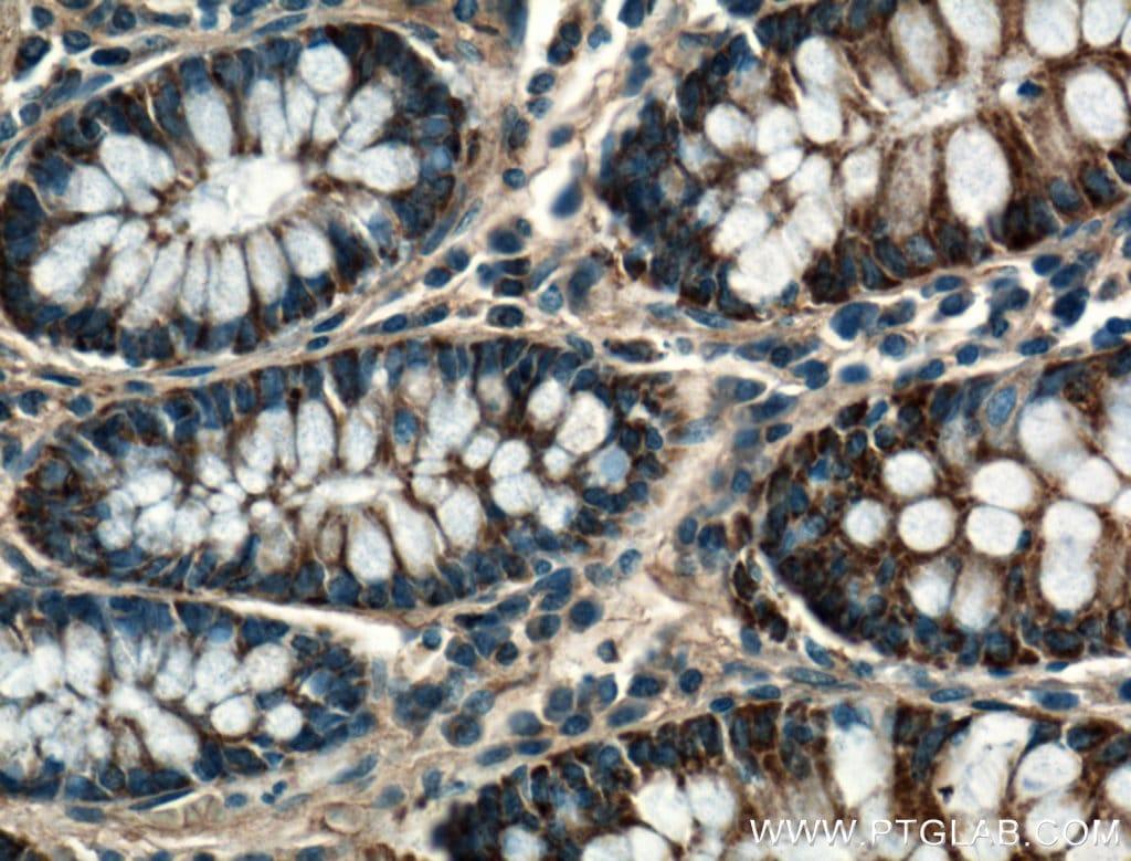 CPT1A Antibody in Immunohistochemistry (Paraffin) (IHC (P))