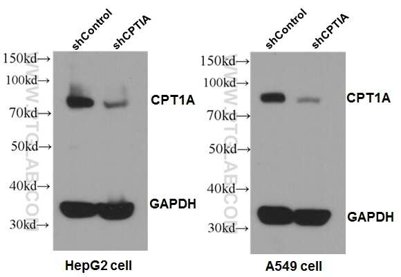 CPT1A Antibody in Western Blot (WB)