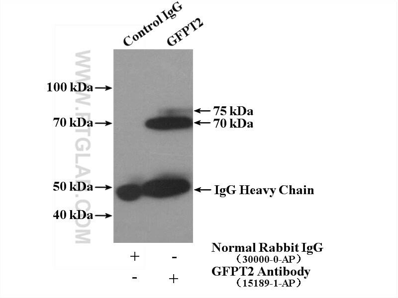 GFPT2 Antibody in Immunoprecipitation (IP)
