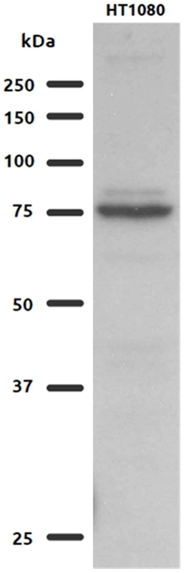 GFPT2 Antibody in Western Blot (WB)