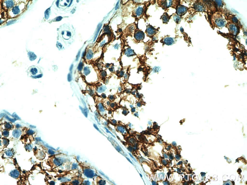 CD98 Antibody in Immunohistochemistry (Paraffin) (IHC (P))
