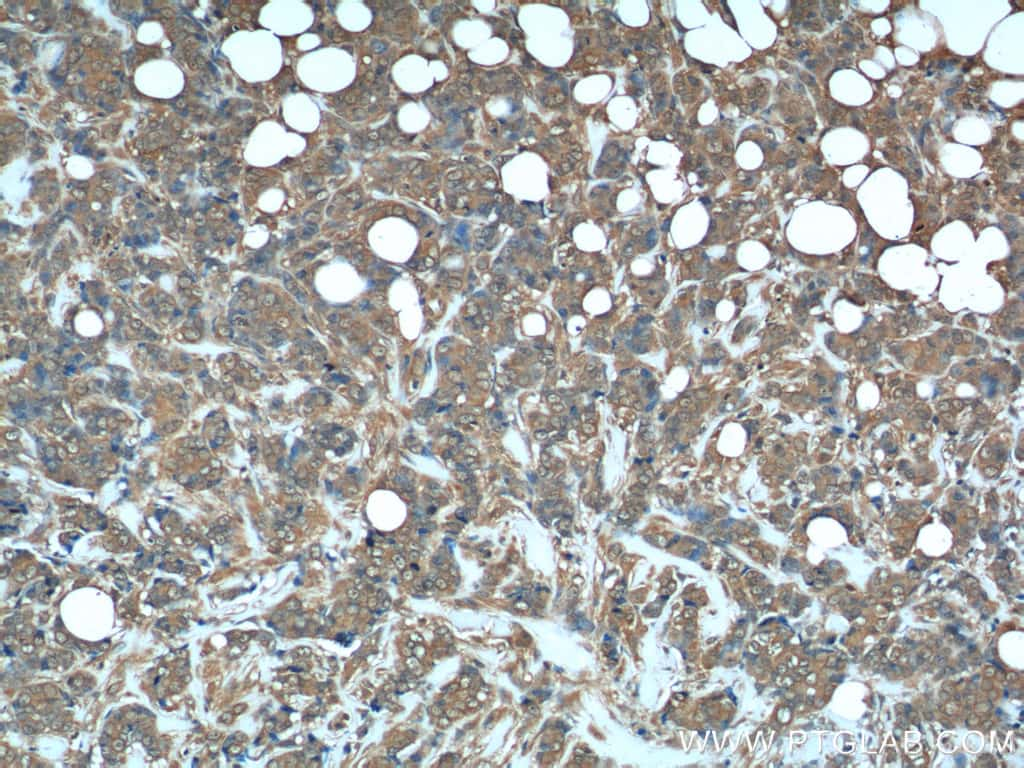 DHFR Antibody in Immunohistochemistry (Paraffin) (IHC (P))