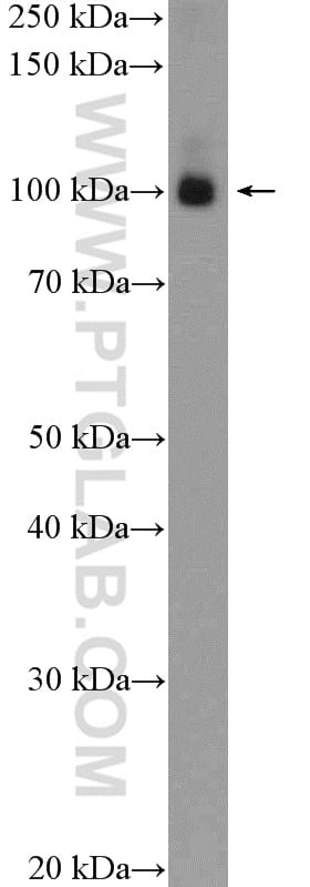 KAP1 Antibody in Western Blot (WB)