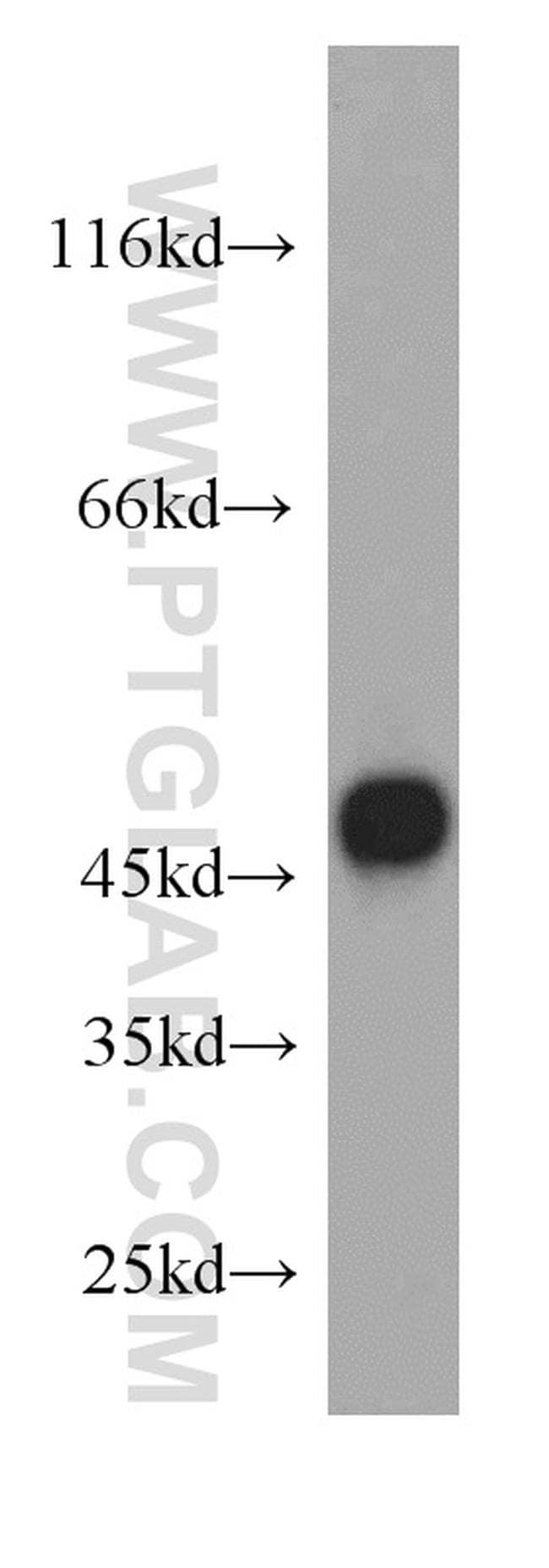 FADS3 Antibody in Western Blot (WB)