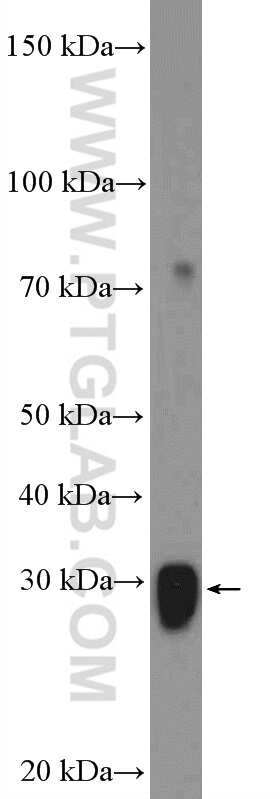 GSTM3 Antibody in Western Blot (WB)