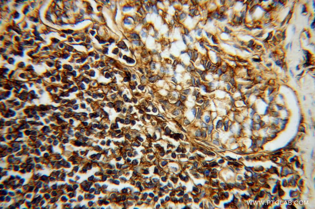 HLA class I ABC Antibody in Immunohistochemistry (Paraffin) (IHC (P))