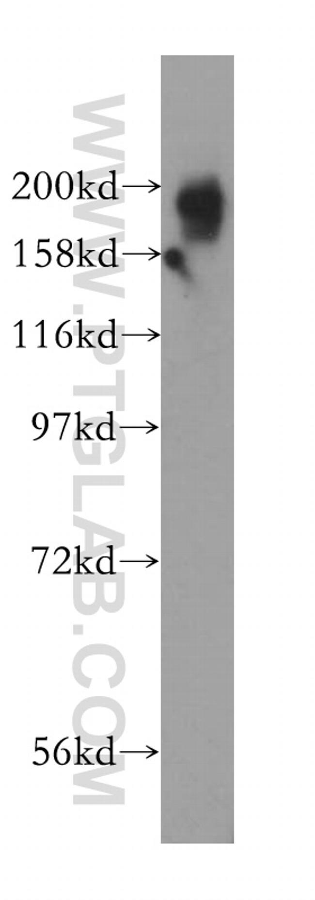 KIF1B Antibody in Western Blot (WB)