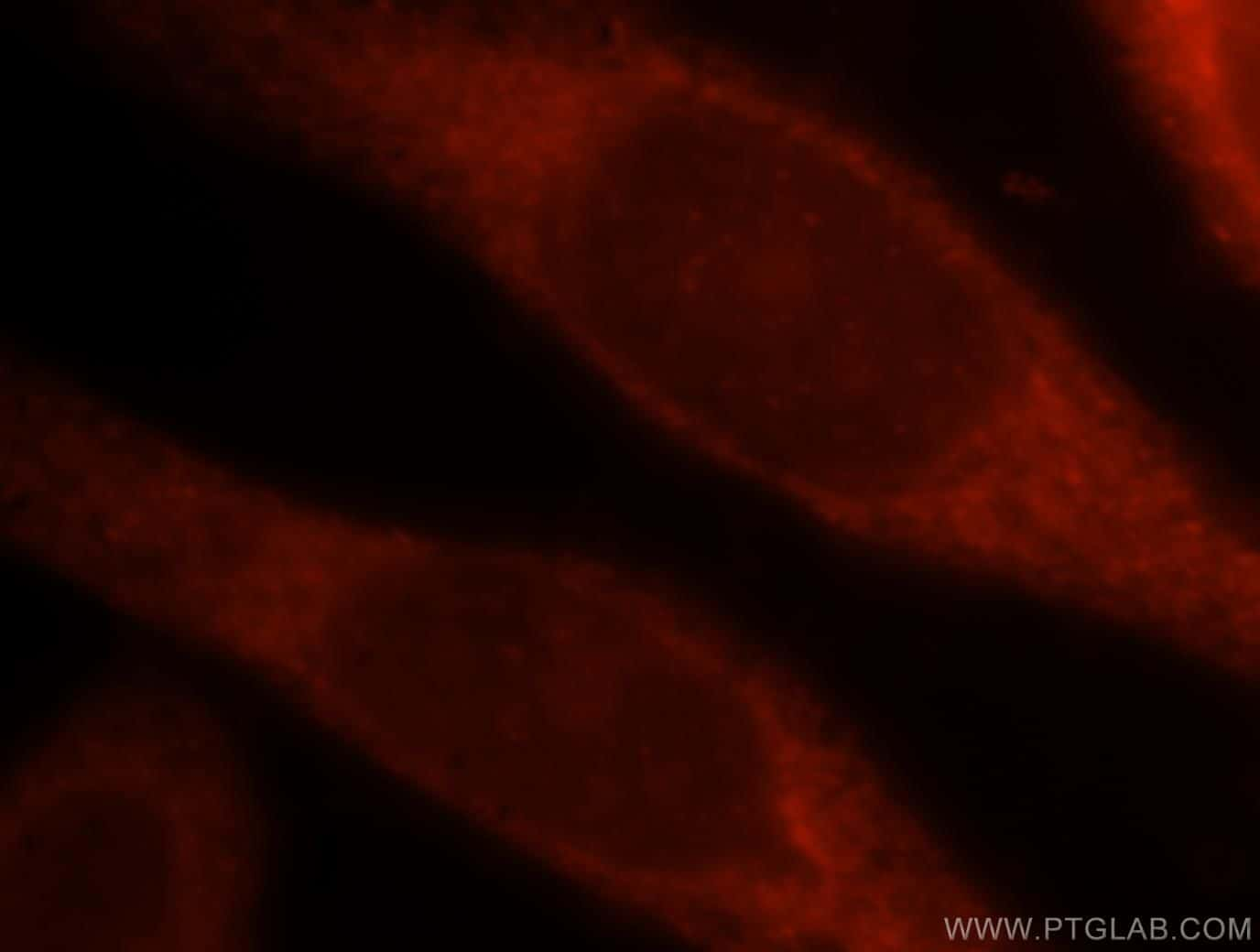 Adenylosuccinate lyase Antibody in Immunofluorescence (IF)