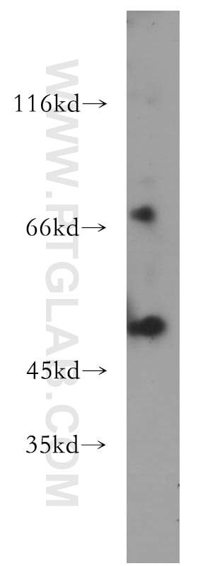 MLYCD Antibody in Western Blot (WB)