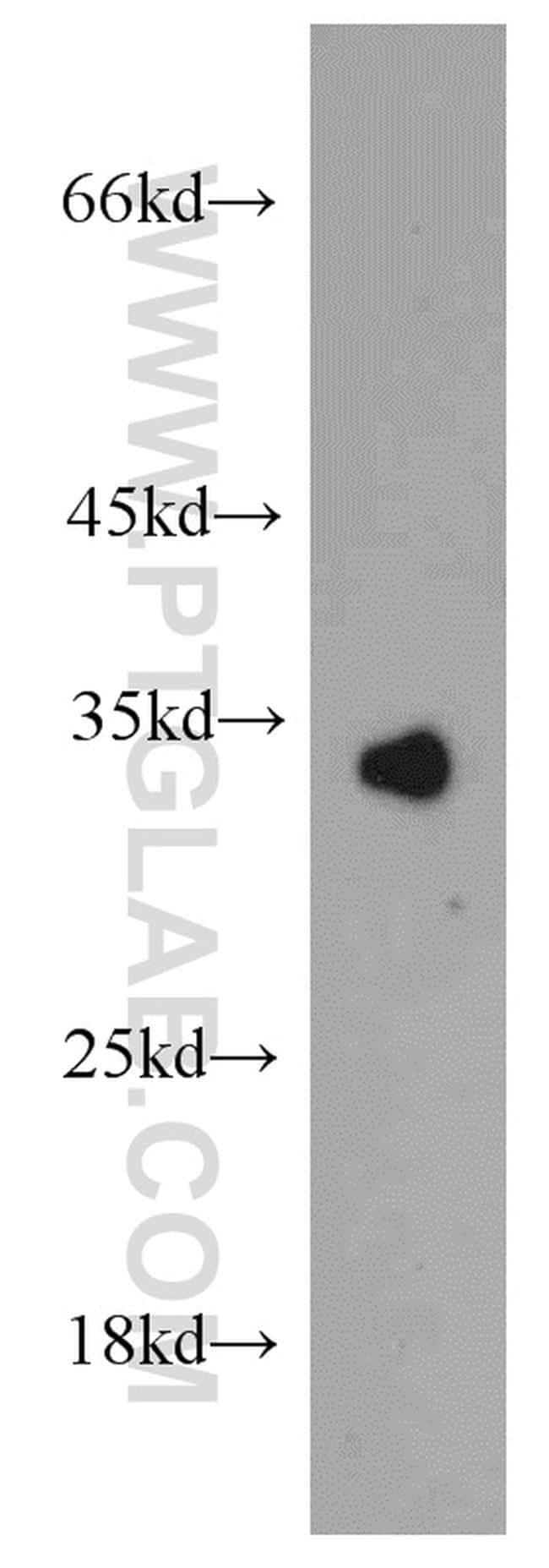 COLEC11 Antibody in Western Blot (WB)
