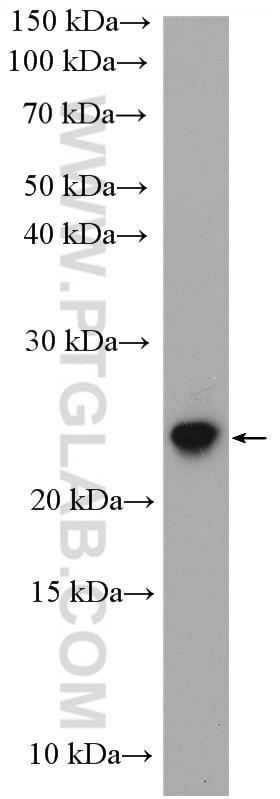 HSPB8 Antibody in Western Blot (WB)