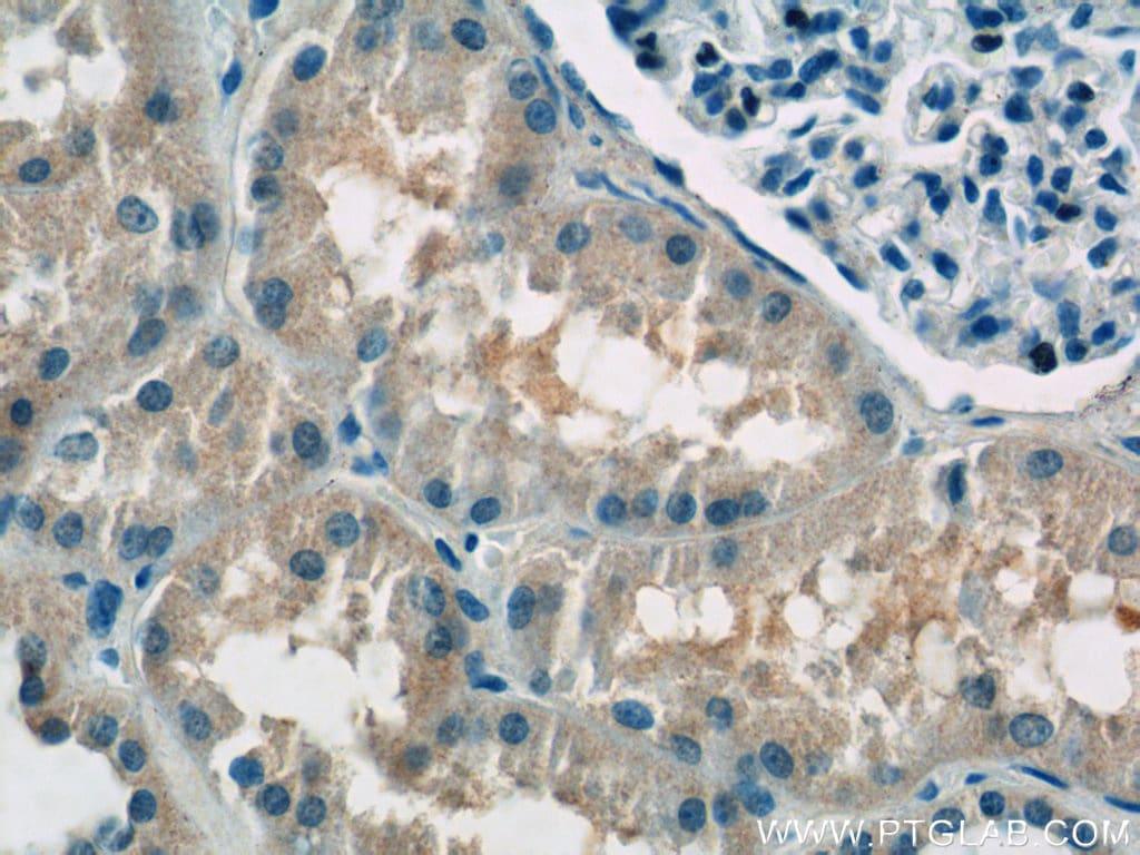 ATP6AP1 Antibody in Immunohistochemistry (Paraffin) (IHC (P))