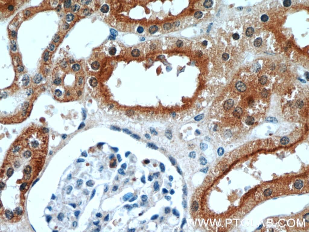 STXBP2 Antibody in Immunohistochemistry (Paraffin) (IHC (P))