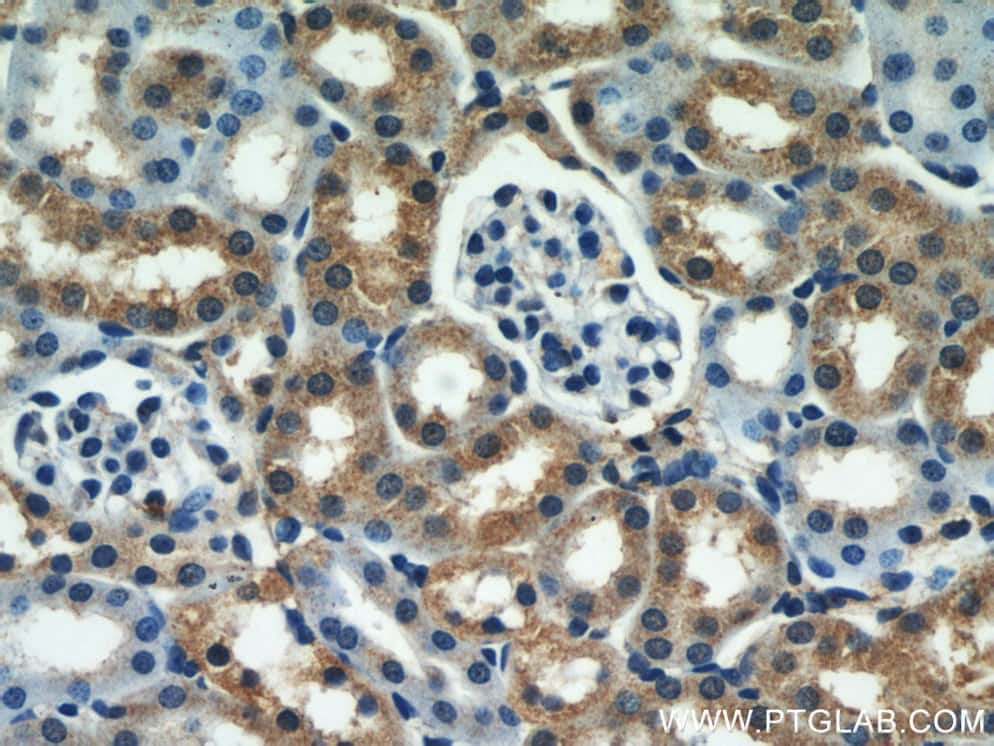 SEPX1 Antibody in Immunohistochemistry (Paraffin) (IHC (P))