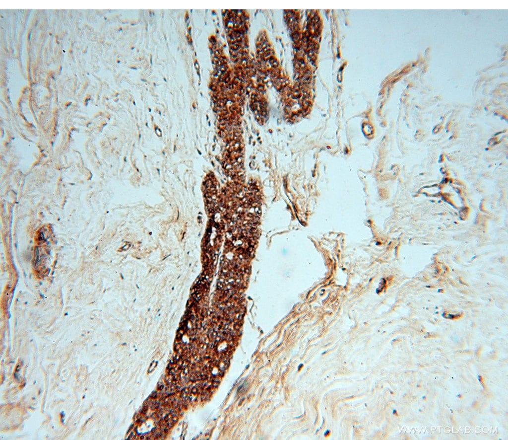 CHST12 Antibody in Immunohistochemistry (Paraffin) (IHC (P))