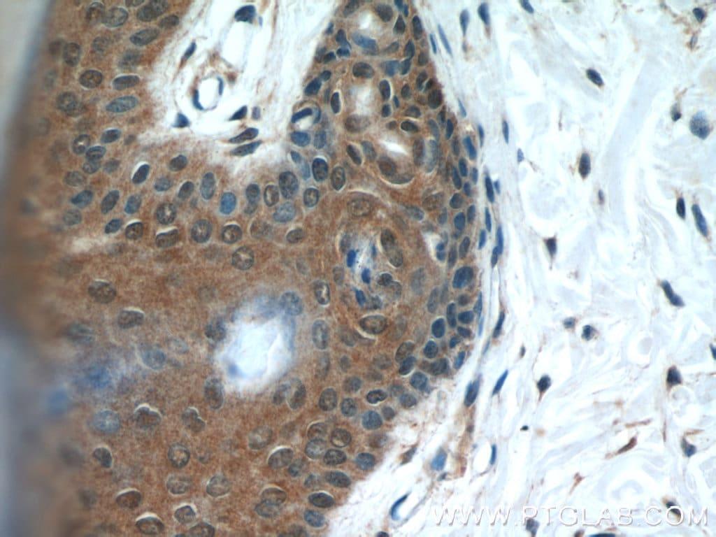 MAD2L1BP Antibody in Immunohistochemistry (Paraffin) (IHC (P))