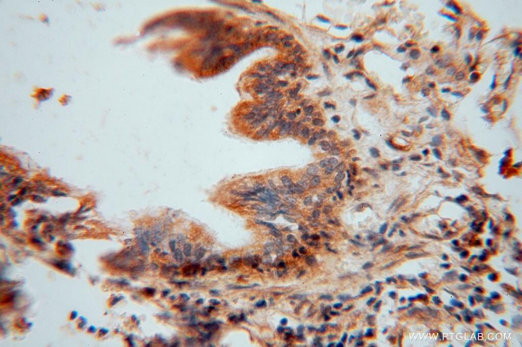 TRIB2 Antibody in Immunohistochemistry (Paraffin) (IHC (P))