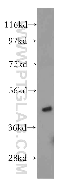 TRIB2 Antibody in Western Blot (WB)