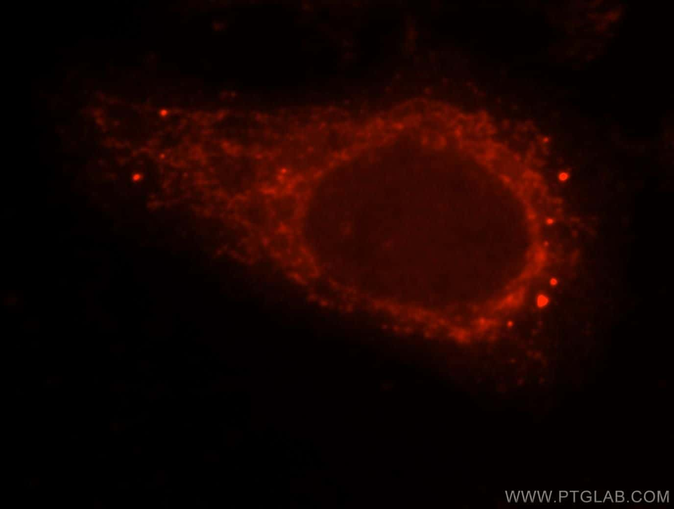 beta Arrestin 1 Antibody in Immunofluorescence (IF)