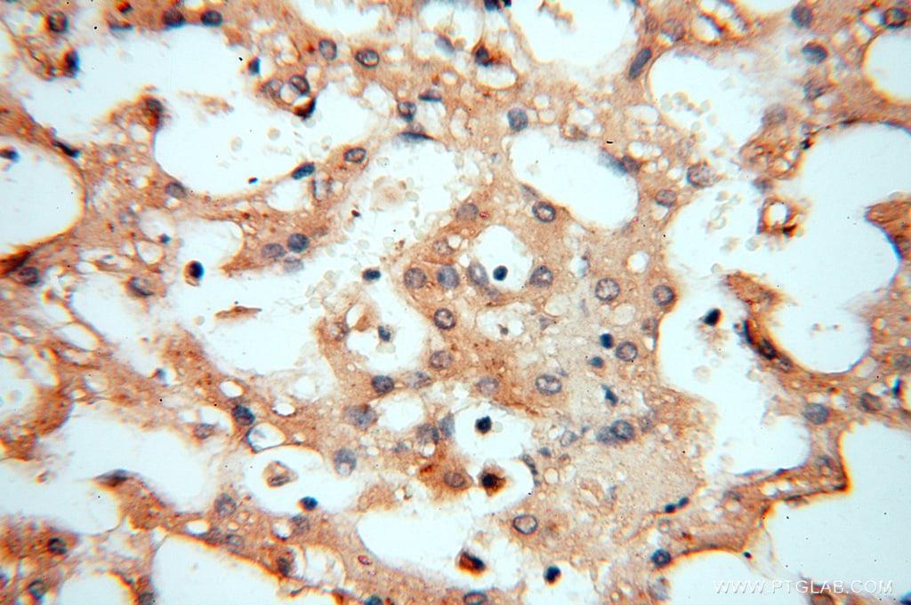NFS1 Antibody in Immunohistochemistry (Paraffin) (IHC (P))
