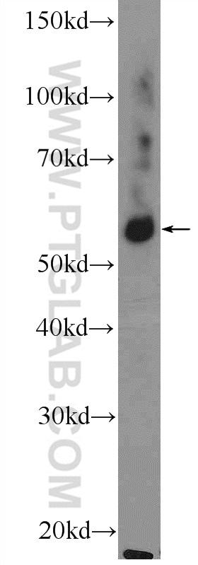 GLRB Antibody in Western Blot (WB)